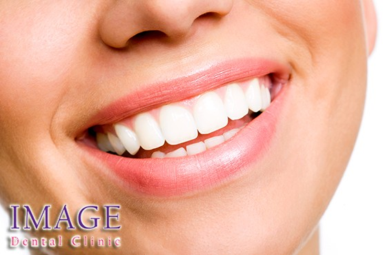£99 instead of £450 for a teeth whitening treatment at Image Dental Clinic, Marylebone– make that smile sparkle and save 78%