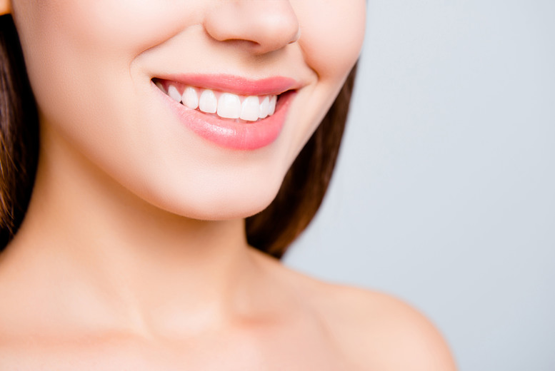 Clear Braces on 1 or 2 Arches @ Waldron Dental Clinic, New Cross