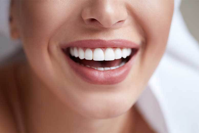 Invisalign Braces @ Harley Dentist  – 2 Arches!