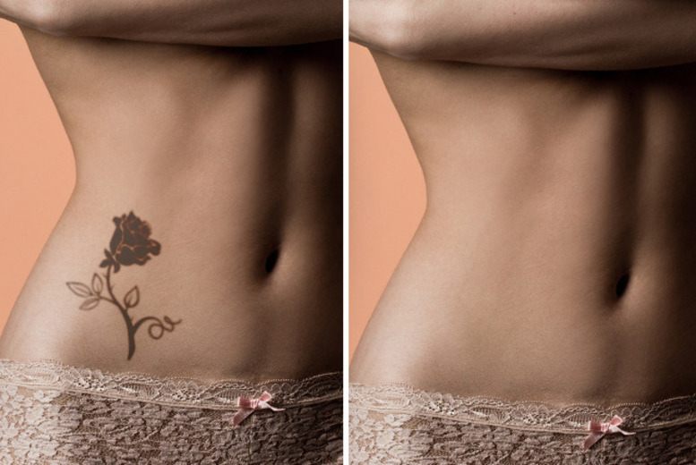 """£19 for one tattoo removal session on any area up to 8""""x 8"""", or £89 for up to six sessions at Churton Clinic, Victoria - save up to 79%"""