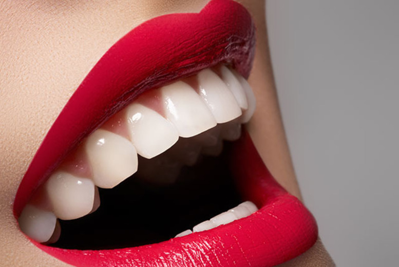 £54 for one LED teeth whitening session inc. a consultation, £99 for two sessions at Imperial Spa, Romford - save up to 78%