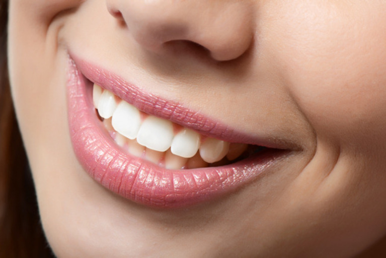 £19 for a dental exam and hygiene appointment at Lavender Hill Dental Practice, Battersea