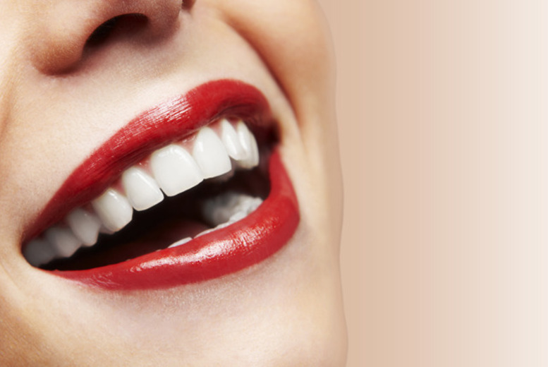 £89 for a full dental check-up, laser teeth whitening and two X-rays or £169 with 2 sessions of teeth whitening at Smileright Dental Clinic, Barbican