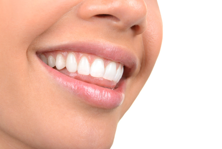 £69 instead of £250 for a 60-minute laser teeth whitening session at NW1 Dental Care, Camden - save 72%