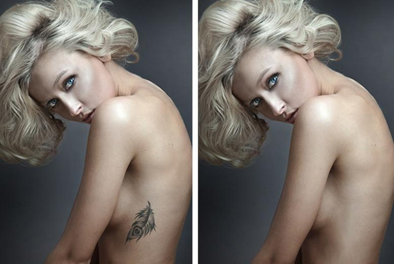 """£29 for 3 tattoo removal sessions on 2""""x2"""" area, £49 for 4""""x4"""", £99 for 8""""x5"""" at The Aesthetics Clinic - save up to 88%"""