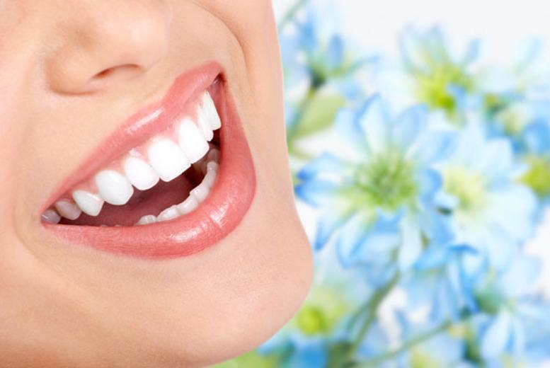 £895 for a dental implant with ceramic crown including full dental exam and cosmetic consultation at Dentspa Dental Health, Nottingham
