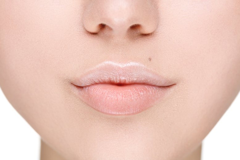 £79 instead of £295 for a 0.55ml Juvéderm ' lip plump' dermal filler treatment and consultation at VGmedispa, Leeds - save 73%