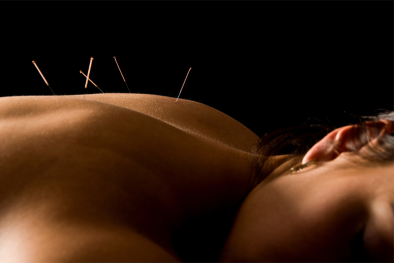 £9 instead of £60 for a one-hour acupuncture session from Organic Hammersmith Ltd - save 85%