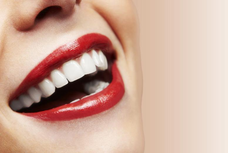 £995 for an 'invisible' Social 6 Lingual brace on your top or bottom front teeth at Progressive Dentistry, Fulham - save up to 66%