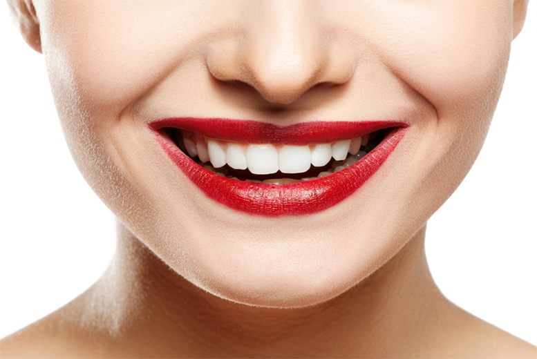 £69 instead of £200 for a home whitening treatment and set of personalised teeth whitening trays, from No. 1 Victoria Terrace Dental Clinic, Newcastle - save 66%