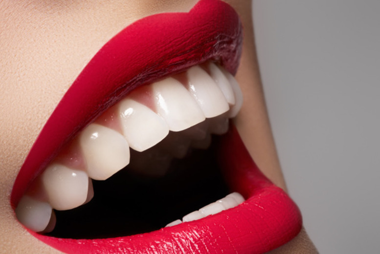 £249 instead of £1000 for a porcelain veneer, £449 for two veneers at Dr Monica's Dental Clinic, London - save up to 75%