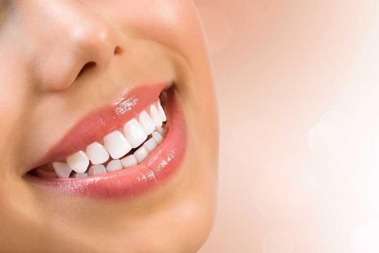 £699 for a set of upper or lower 'six month smile' clear braces, £899 for both at Aura Dental Spa, St John's Wood - save up to 56%
