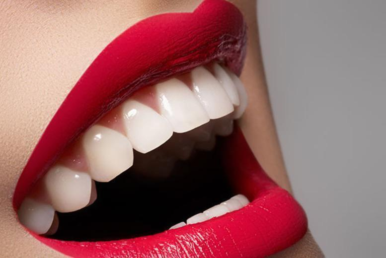 £49 instead of up to £250 for one LED teeth whitening session inc. a consultation or £89 for two sessions at Imperial Smile Beauty, Romford - save up to 80%