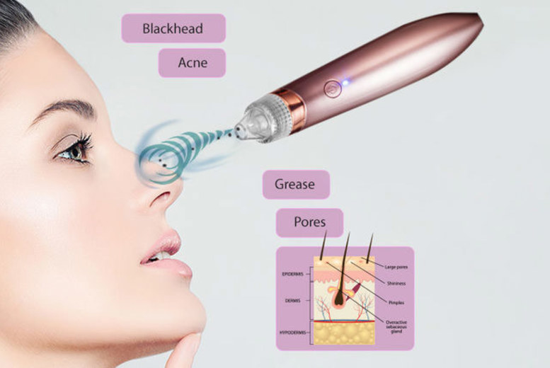 Electric Vacuum Blackhead and Face Cleanser