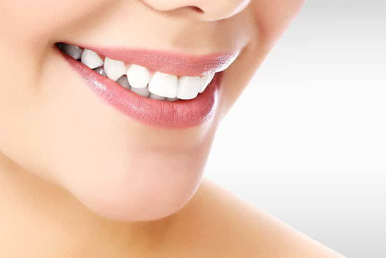 London: Clear Fixed Braces @ iDental, Shepherds Bush – 1 or 2 Arches! for £599