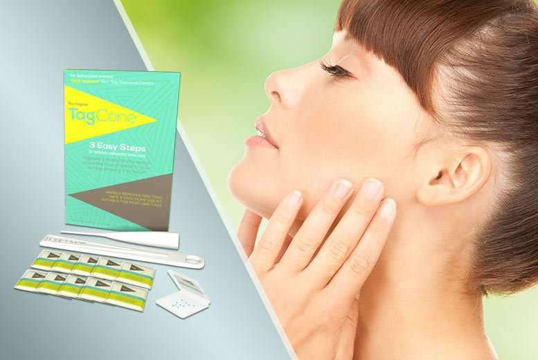 £9.99 instead of £49.99 (from TagCone) for one skin tag removal kit, £15 for two kits - save up to 80%