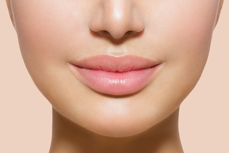 £79 instead of up to £325 for a 0.55ml juvéderm ' lip plump' dermal filler treatment at VGmedispa - choose from seven locations and save up to 76%