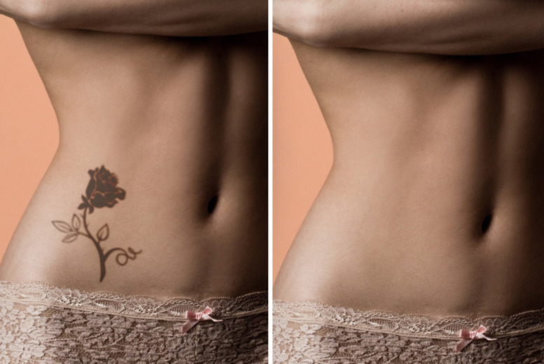 £14 for one session of laser tattoo removal, £34 for three sessions on a small area or £49 for three sessions on a large area at Renude Clinic, Leeds - save up to 53%