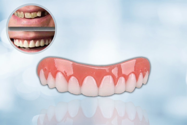 'Perfect Smile' Veneers for £3.99