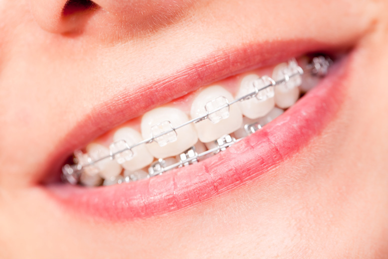 £599 instead of £1995 for a set of upper or lower clear braces, or £899 for both at iDental, Shepherd's Bush - save up to 70%