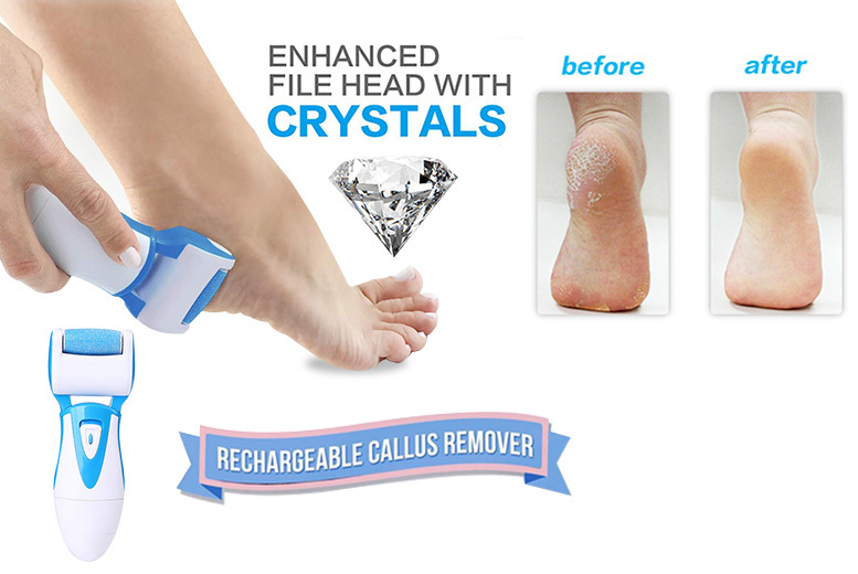 Electric Dead Skin Remover for Feet & Replacement Roller – 2 Colours! for £8.99