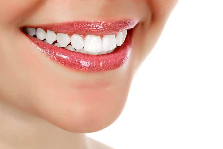 Fixed Dental Brace @ Infinity Smiles - 7 Locations!