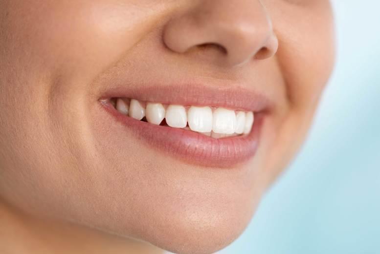 LED Teeth Whitening, Romford