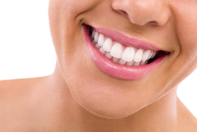 Porcelain Veneers Dental Treatment – 2 Locations!